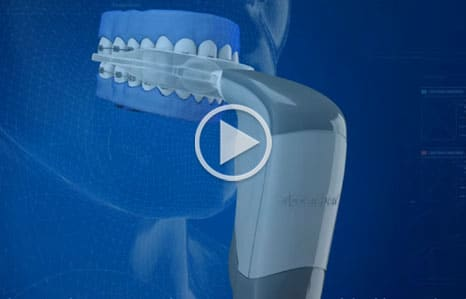 Acceledent Video Thumbnail Toro Burlington Orthodontics Massachusetts
