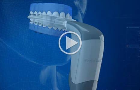 Acceledent Video Thumbnail Toro Burlington Orthodontics Massachusetts