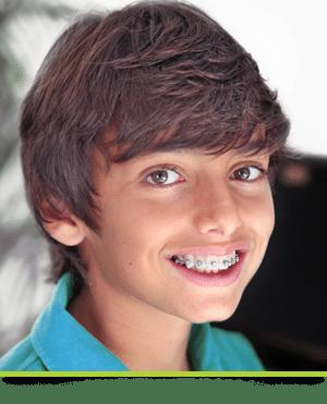 All About Braces Burlington Orthodontics